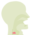 Icon Heiserkeit