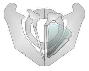 Thyroplastik