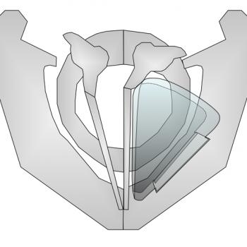 Schematische Darstellung der Thyreoplastik