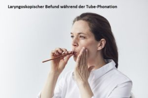 Tube Phonation Birte Heckmann MEDICAL VOICE CENTER