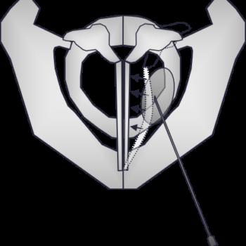 Glottisschluss (bei Parese links) nach Augmentation