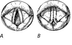 Das Aussehen der Stimmbänder bei der Einatmung (A) eines gesunden Menschen und (B) bei einem Patienten mit VCD.